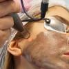 Karbon Peeling ile Leke Tedavisi