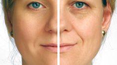 Yüz Gerdirme Nedir Nasıl Yapılır