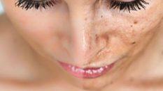 Kimyasal Peeling ile Leke Tedavisi