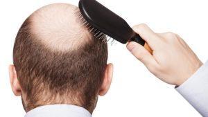 PRP + Ozon Yöntemi ile Saç Ekimi