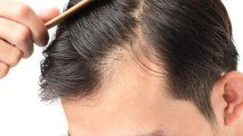 Saç Aşısı