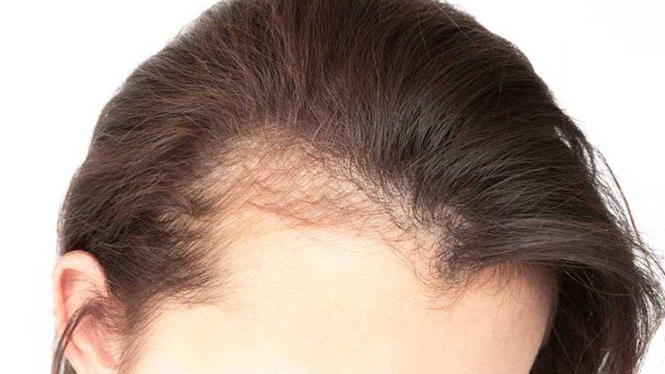 Kadın Saç Ekimi