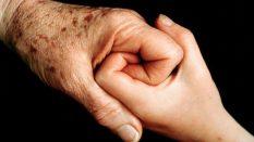 Plazma ile Yaşlılık Lekesi Tedavisi